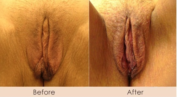 vaginal-rejuvination (2)
