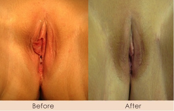vaginal-rejuvination (3)