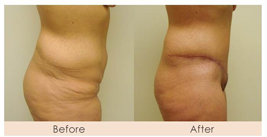 dr-gray-tummy-tuck-correction