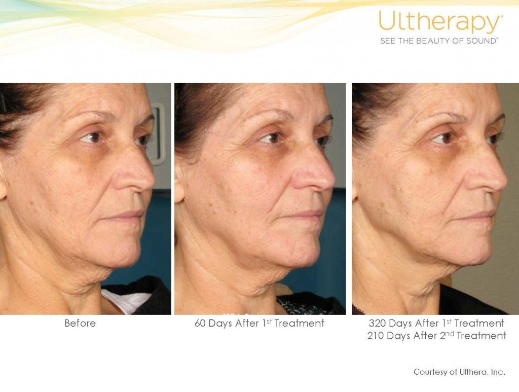 Ultherapy Michigan Cosmetic Surgery Center A New You