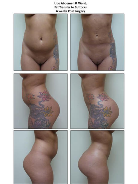 Lipo Abdomen & Waist / Fat Transfer to Buttocks