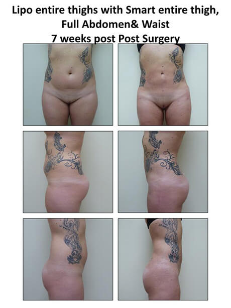 Lipo of Thighs / Full Abdomen & Waist