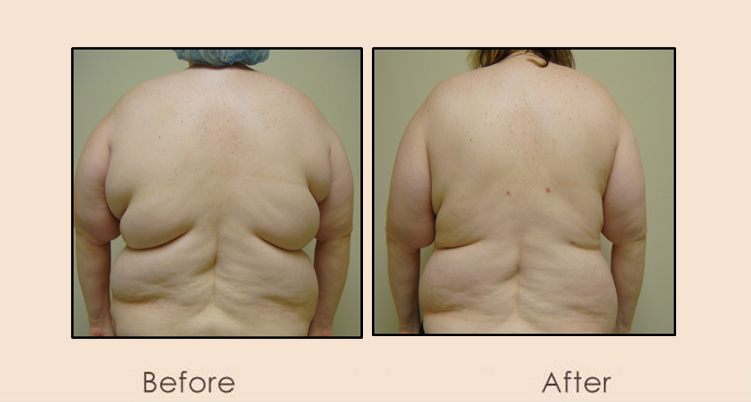 External External Ultrasonic Liposuction Axilla & Back