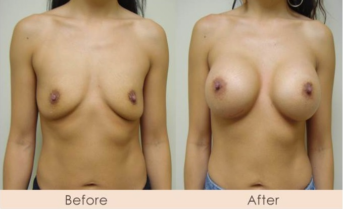 Silicone Breast Augmentation Under Muscle Inframammary Incision Silicone 400cc