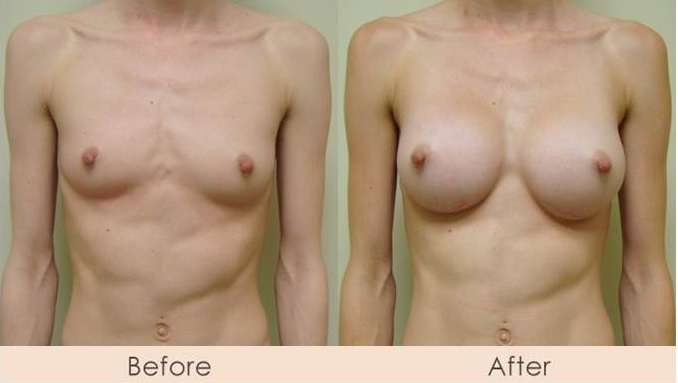 Silicone Breast Augmentation Under Muscle Inframammary Incision 275cc U