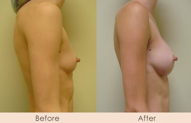 Silicone Breast Augmentation Under Muscle Inframammary Incision 275cc