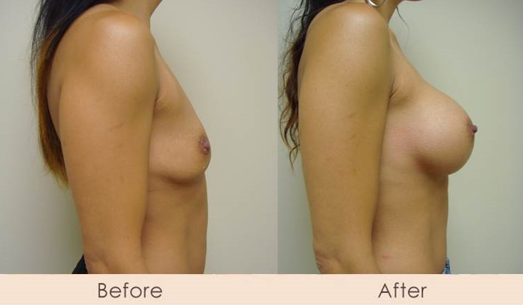 Silicone Breast Augmentation Under Muscle Inframammary Incision 400cc