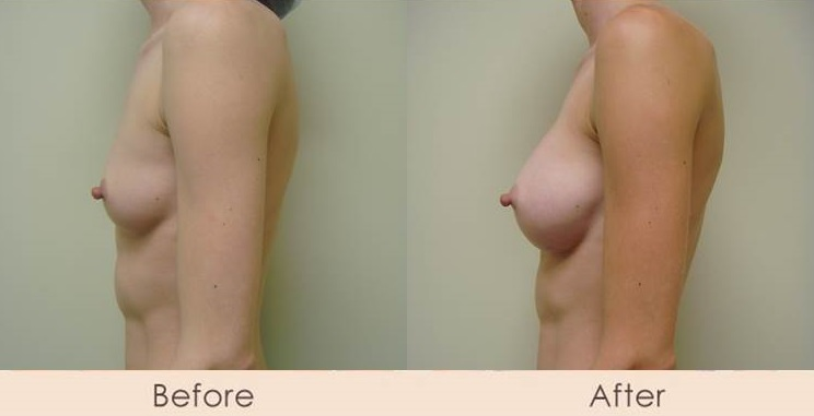 Silicone Inframammary 275cc Under Muscle