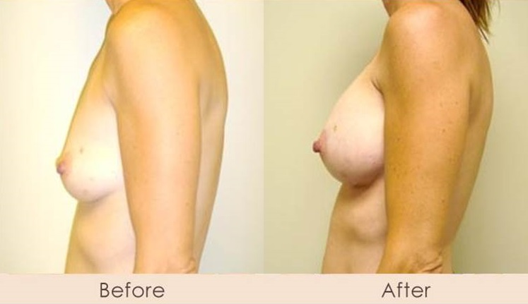Silicone Breast Augmentation Under Muscle Inframammary Incision 325cc