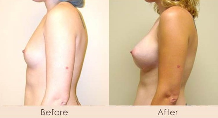Silicone Breast Augmentation Under Muscle Inframammary Incision 375cc