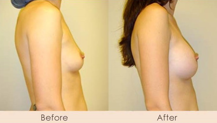 Silicone Breast Augmentation Under Muscle Inframammary Incision L300cc – R325cc