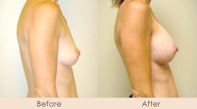 Silicone Breast Augmentation Under Muscle Inframammary Incision 325cc H