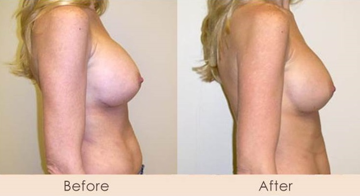 Removal of Saline and Replaced with Silicone Inframammary 650cc Under Muscle High Profile