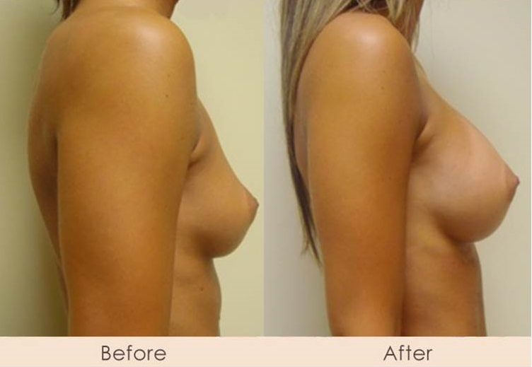 Silicone Breast Augmentation Under Muscle Inframammary Incision 300cc