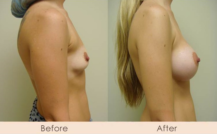 Silicone Breast Augmentation Under Muscle Inframammary Incision 350cc