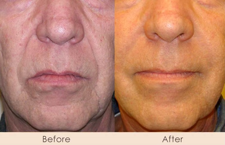 Alloderm Nasal Folds and Marionettes