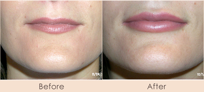 Alloderm to Lips