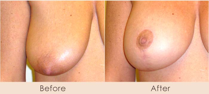 Areola Reduction w/ Breast Lift