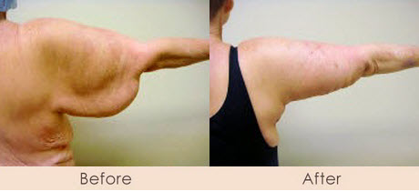 Arm Tuck – Posterior Incision