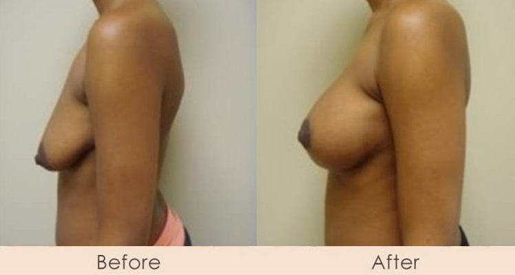 Breast Lift with Scarless Breast Implants, Left 325 – 325cc Right 325 – 400cc