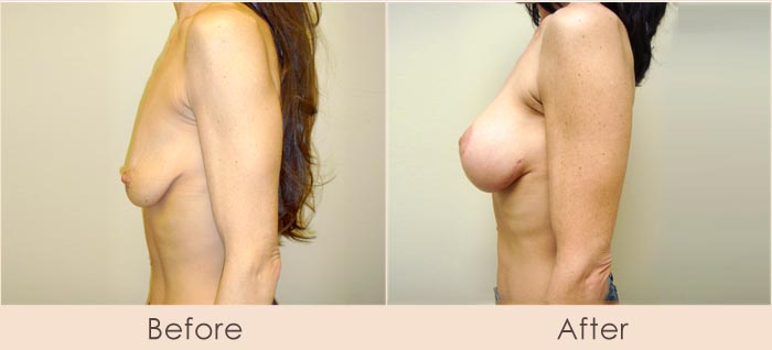 Breast Lift with Silicone Breast Implants, 300cc Smooth Under Muscle