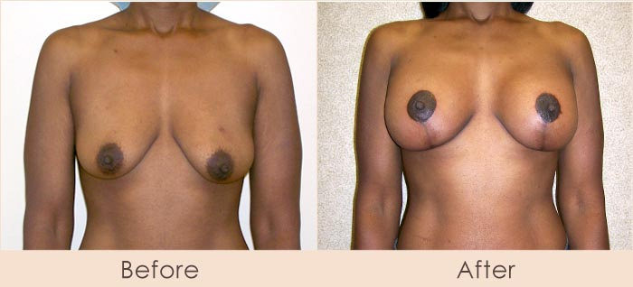 Breast Lift with Scarless Breast Implants, 225cc – 265cc Under Muscle