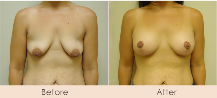 Breast Lift with Saline Breast Implants, 250cc – 290cc Under Muscle