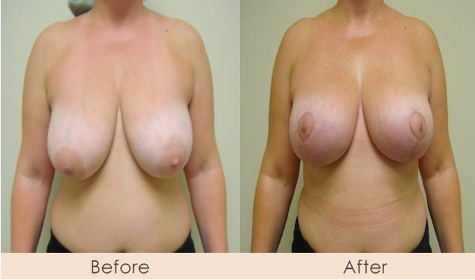 Breast Lift/Mastopexy