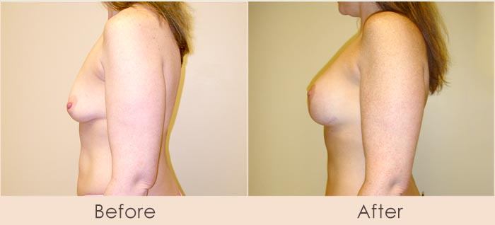 Breast Lift with Scarless Breast Implants, Left: 175cc – 215cc, Right: 200cc – 240cc Under Muscle