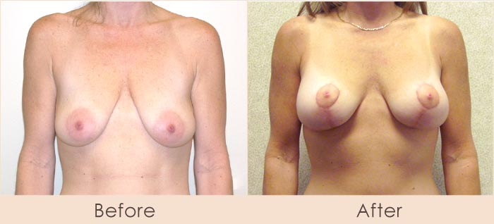 Breast Lift with Silicone Breast Implants, 300cc Inframmary Smooth Over Muscle