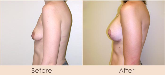 Breast Lift with Scarless Breast Implants, 175cc – 215cc Under Muscle