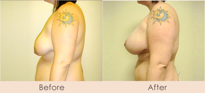 Breast Lift with Scarless Breast Implants, 425cc – 500cc Under Muscle