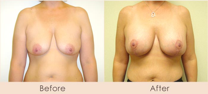 Breast Lift with Scarless Breast Implants, 325cc – 400cc Under Muscle