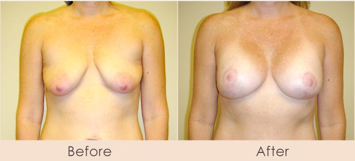 Breast Lift with Scarless Breast Implants, 250cc – 290cc Under Muscle