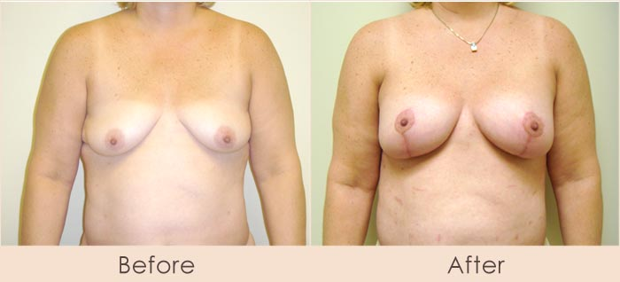 Breast Lift with Scarless Breast Implants, 200cc – 240cc Under Muscle