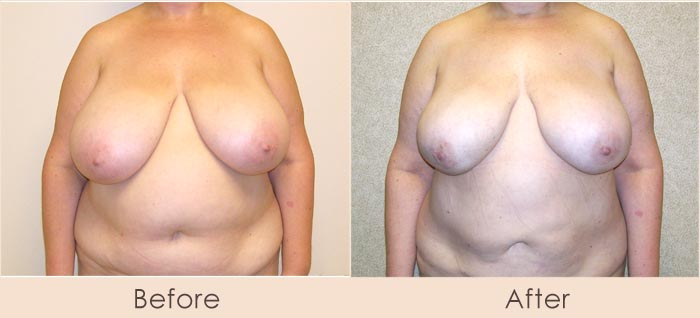 Lipo of Breasts