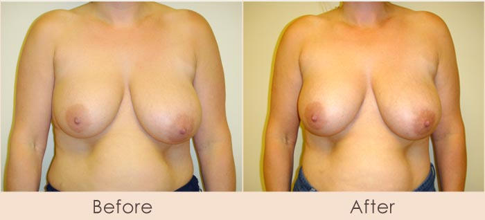 Lipo of Left Breast