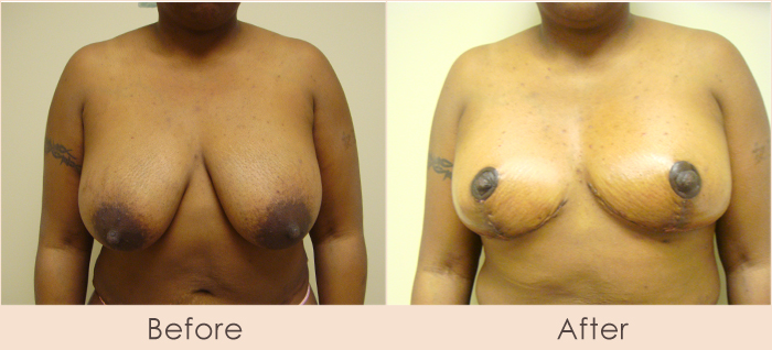 Traditional Breast Reduction 5 Days Post Surgery