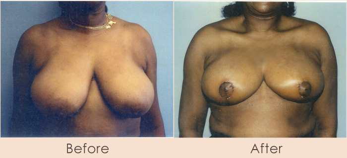Traditional Breast Reduction