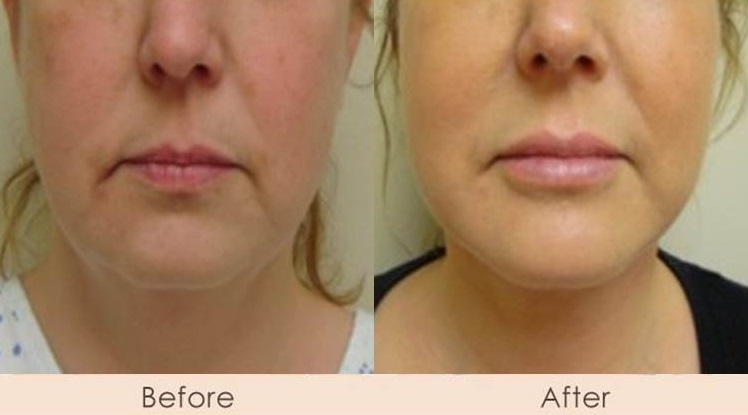 Chin Implant & Face Lift