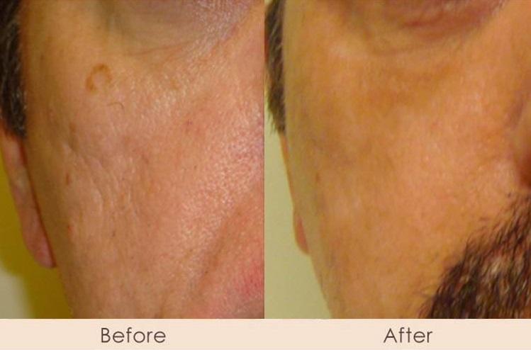 CO2 Laser Full Face for Acne Scarring