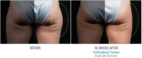 coolsculpting-3