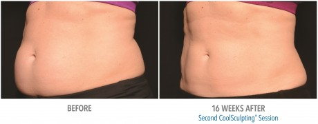 coolsculpting-4