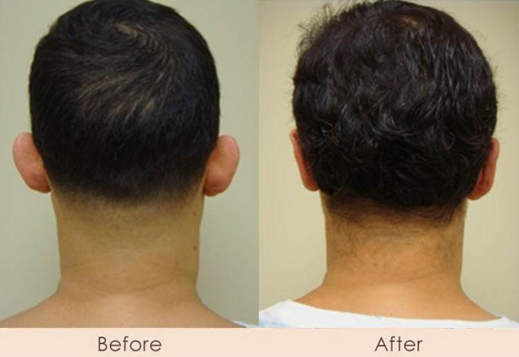 Ear Reconstruction – Otoplasty