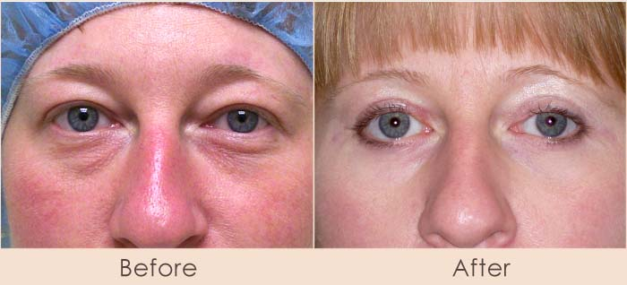 Eye Tuck – Upper and Lower Lids