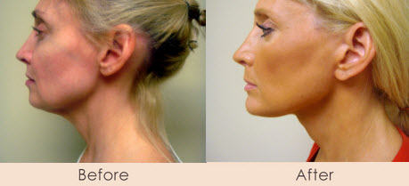 Face Lift & Chin Implant