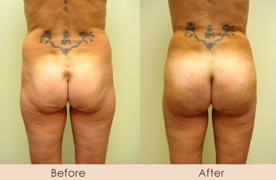 Fat Transfer to Buttocks