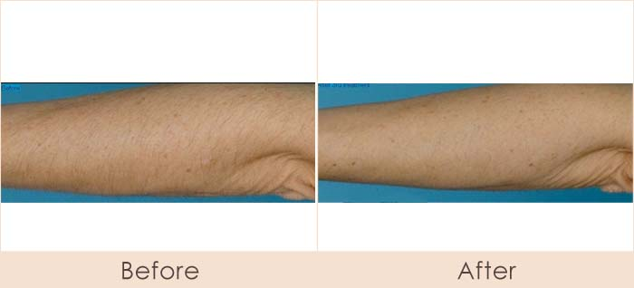 CoolGlide Laser Hair Removal