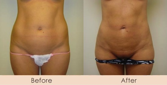 External Ultrasonic Liposuction of Abdomen