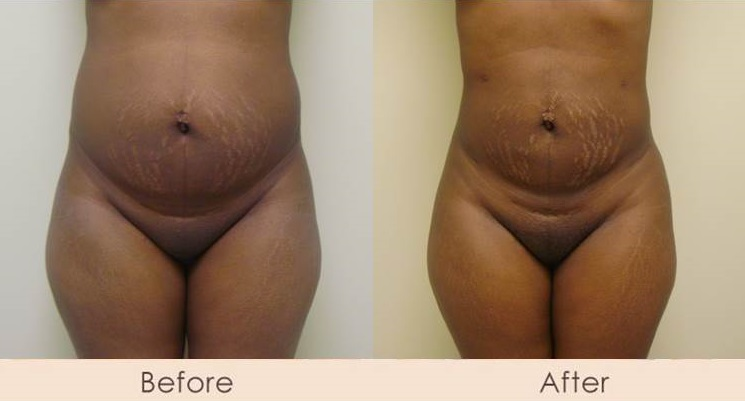External Ultrasonic Liposuction of Abdomen, Waist, & Hips with Smart Lipo MPX to Full Abdomen